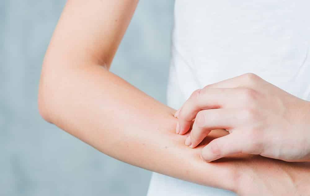 Objawy niedoboru witaminy D – sucha skóra